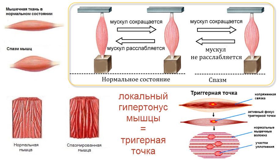 Гіпертонус интимных мышц, спазм